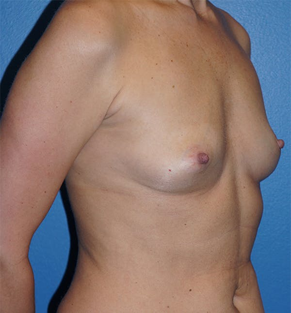 Breast Augmentation Gallery - Patient 5226536 - Image 7