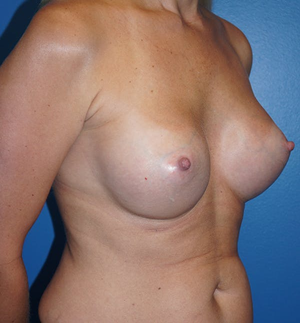 Breast Augmentation Gallery - Patient 5226536 - Image 8