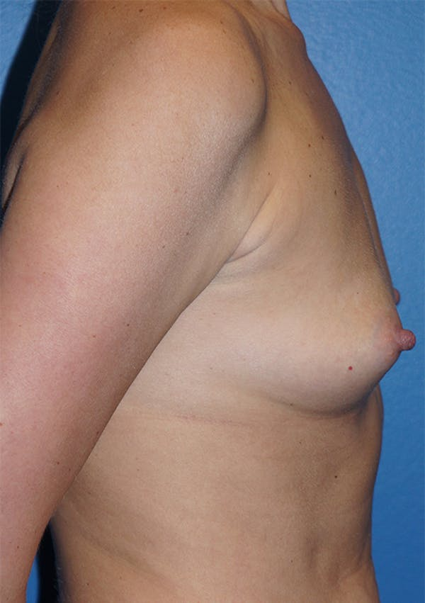 Breast Augmentation Gallery - Patient 5226536 - Image 9