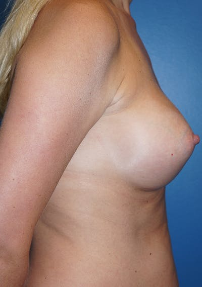 Breast Augmentation Gallery - Patient 5226536 - Image 10