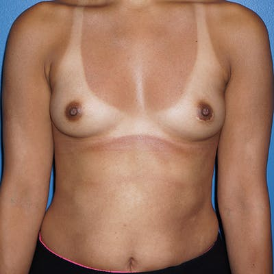 Breast Augmentation Gallery - Patient 5226550 - Image 19