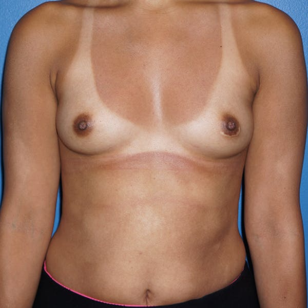 Breast Augmentation Gallery - Patient 5226550 - Image 1
