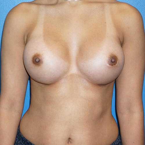 Breast Augmentation Gallery - Patient 5226550 - Image 2