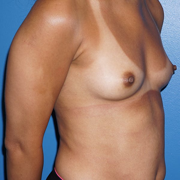 Breast Augmentation Gallery - Patient 5226550 - Image 3