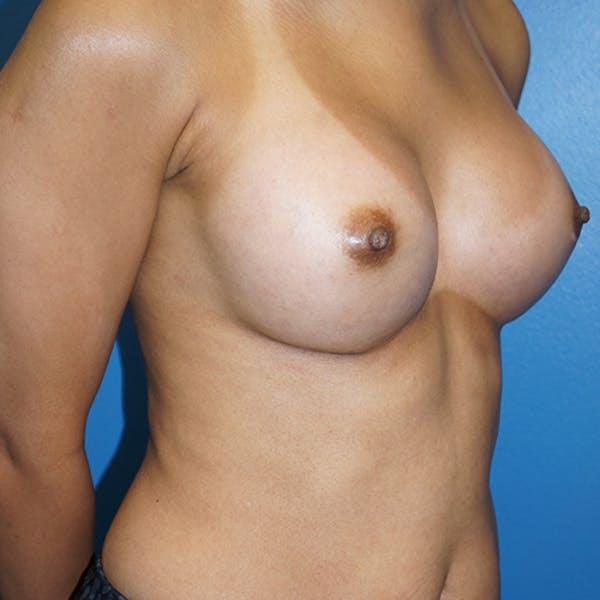 Breast Augmentation Gallery - Patient 5226550 - Image 4