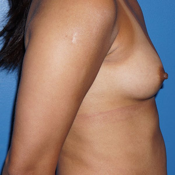 Breast Augmentation Gallery - Patient 5226550 - Image 5