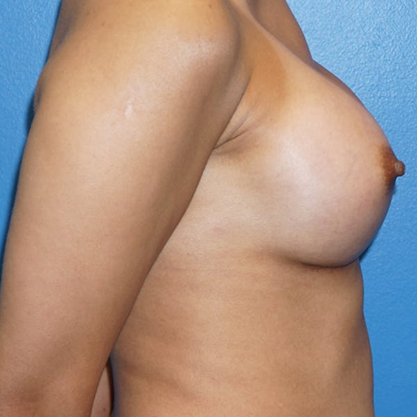 Breast Augmentation Gallery - Patient 5226550 - Image 6