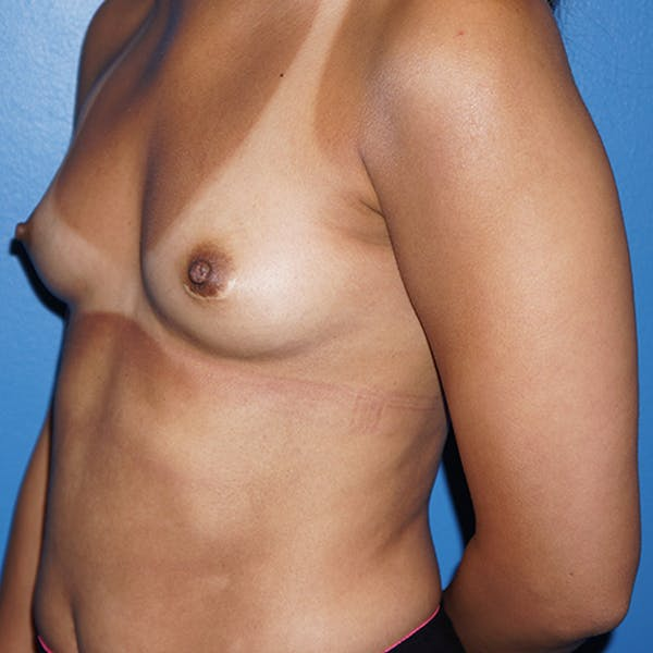 Breast Augmentation Gallery - Patient 5226550 - Image 7