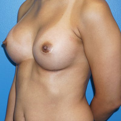 Breast Augmentation Gallery - Patient 5226550 - Image 8