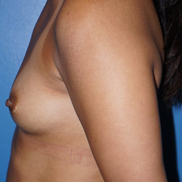 Breast Augmentation Gallery - Patient 5226550 - Image 9
