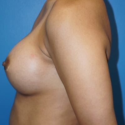Breast Augmentation Gallery - Patient 5226550 - Image 10