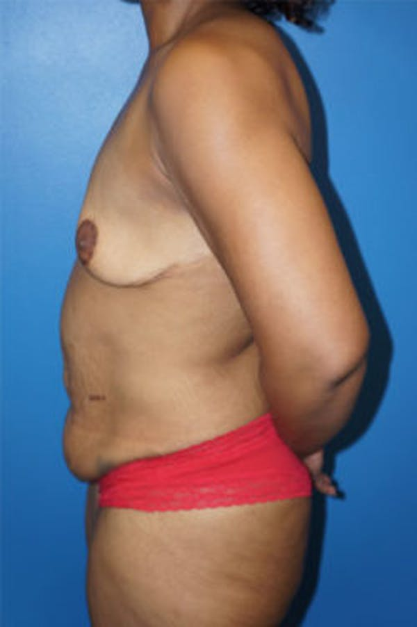 Breast Augmentation Gallery - Patient 5226552 - Image 3