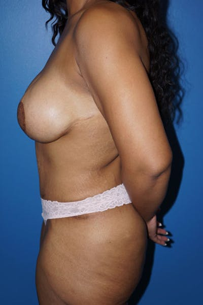 Breast Augmentation Gallery - Patient 5226552 - Image 4