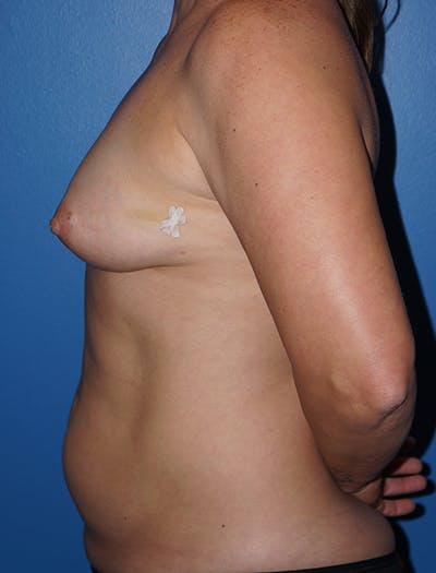 Breast Augmentation Gallery - Patient 5226568 - Image 1