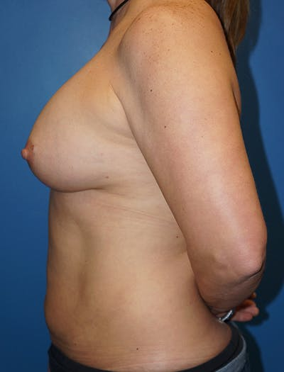 Breast Augmentation Gallery - Patient 5226568 - Image 2