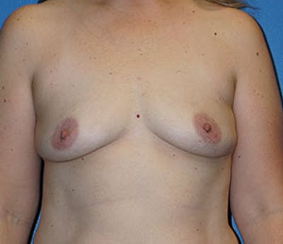 Breast Augmentation Gallery - Patient 5226583 - Image 1