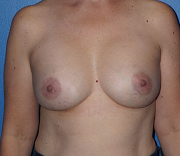 Breast Augmentation Gallery - Patient 5226583 - Image 2