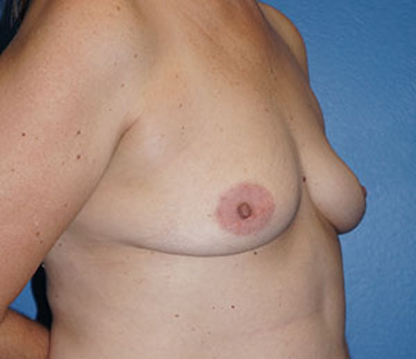 Breast Augmentation Gallery - Patient 5226583 - Image 3