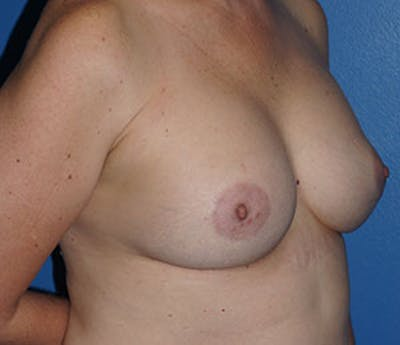 Breast Augmentation Gallery - Patient 5226583 - Image 4