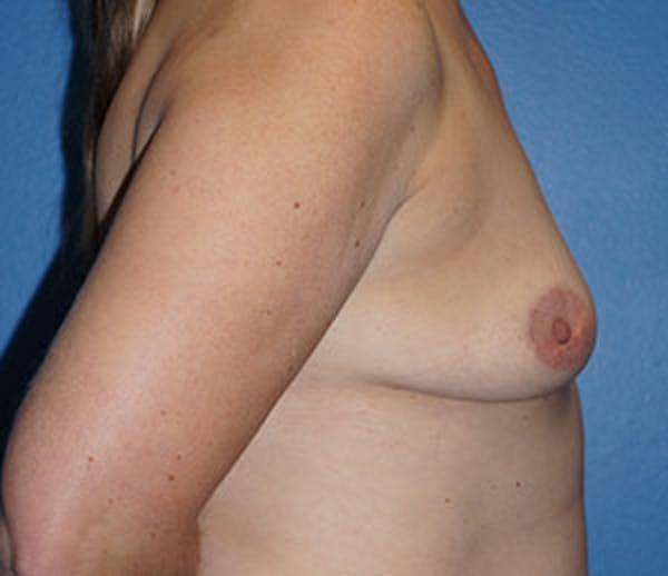 Breast Augmentation Gallery - Patient 5226583 - Image 5