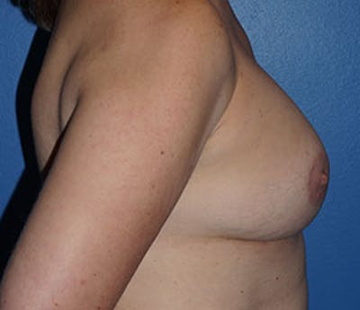 Breast Augmentation Gallery - Patient 5226583 - Image 6