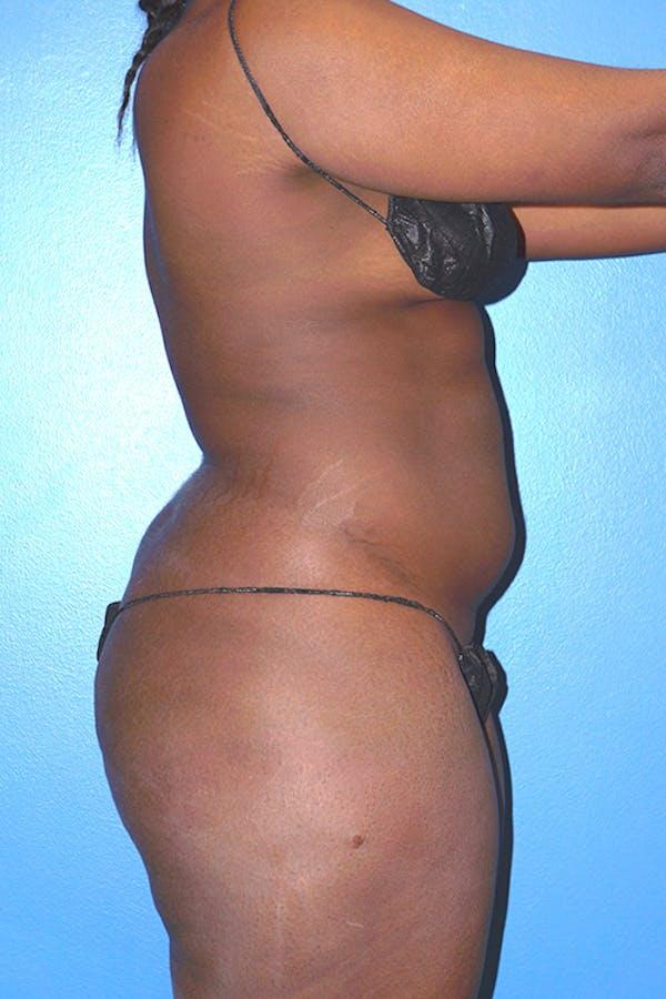 Brazilian Butt Lift Gallery - Patient 5226635 - Image 5
