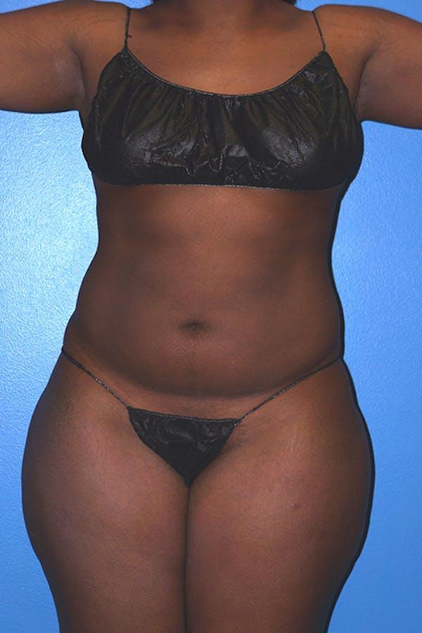 Brazilian Butt Lift Gallery - Patient 5226635 - Image 7