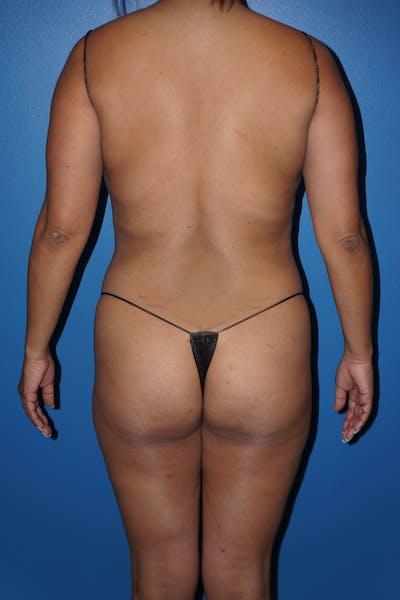 Brazilian Butt Lift Gallery - Patient 5226651 - Image 1