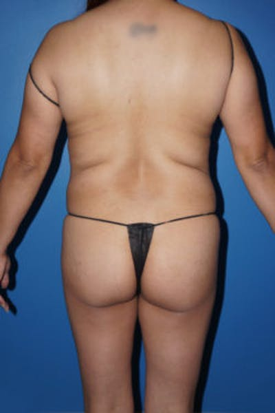 Brazilian Butt Lift Gallery - Patient 5226653 - Image 1