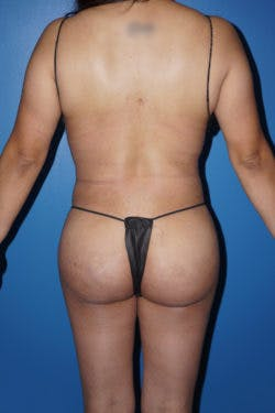 Brazilian Butt Lift Gallery - Patient 5226653 - Image 2