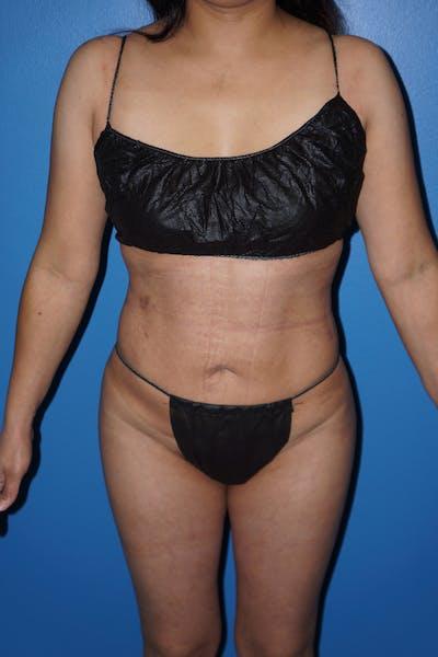 Brazilian Butt Lift Gallery - Patient 5226653 - Image 6