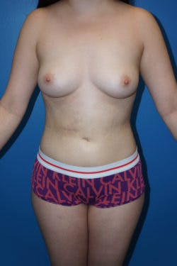 Fat Transfer Gallery - Patient 5226656 - Image 2