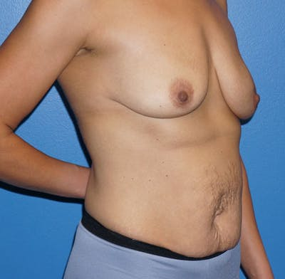 Mommy Makeover Gallery - Patient 5226673 - Image 1