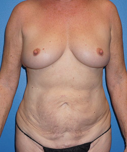 Mommy Makeover Gallery - Patient 5226726 - Image 1