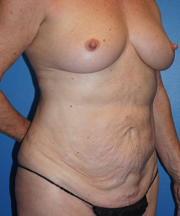 Mommy Makeover Gallery - Patient 5226726 - Image 3