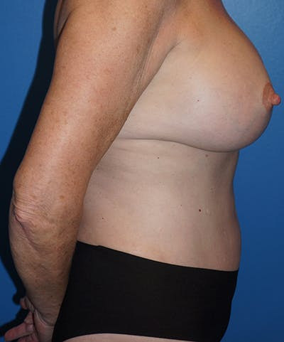 Mommy Makeover Gallery - Patient 5226726 - Image 6