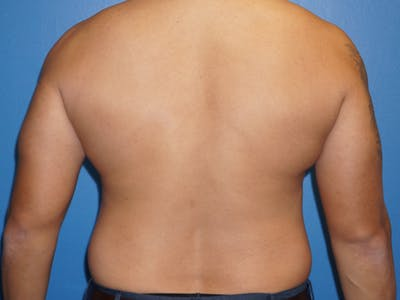 Liposuction Gallery - Patient 5227124 - Image 1