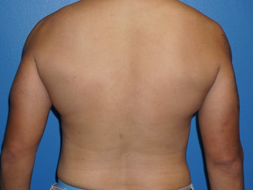 Liposuction Gallery - Patient 5227124 - Image 2