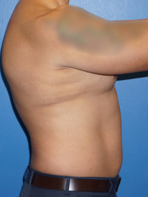 Liposuction Gallery - Patient 5227124 - Image 3