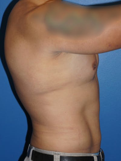 Liposuction Gallery - Patient 5227124 - Image 4