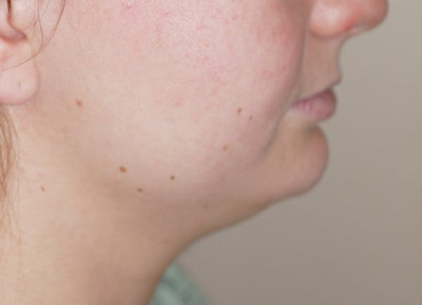 Liposuction Gallery - Patient 5227126 - Image 1
