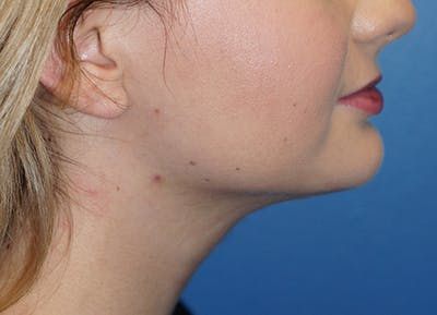 Liposuction Gallery - Patient 5227126 - Image 2