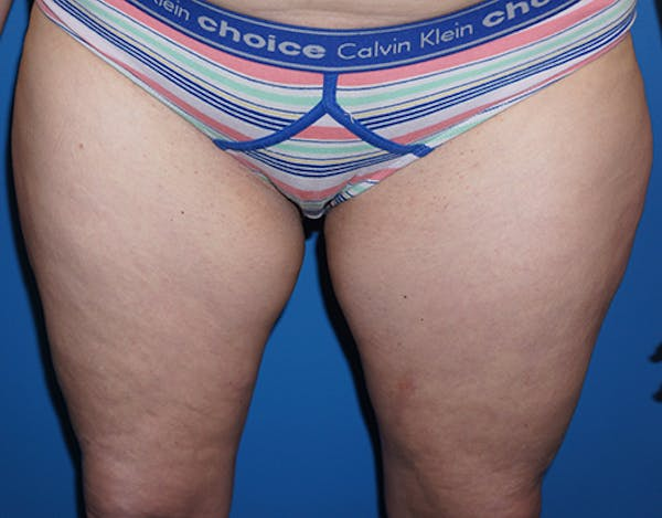 Liposuction Gallery - Patient 5227129 - Image 1