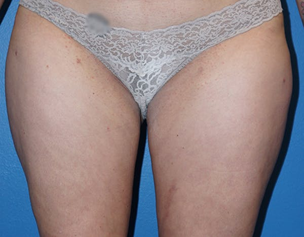Liposuction Gallery - Patient 5227129 - Image 2