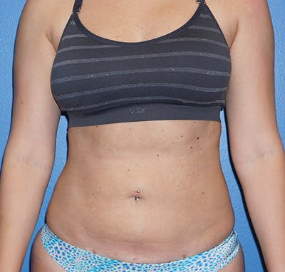 Liposuction Gallery - Patient 5227136 - Image 2