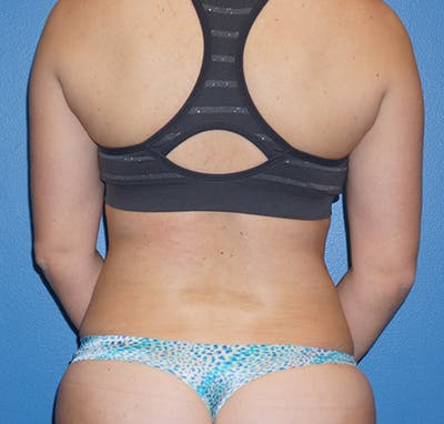 Liposuction Gallery - Patient 5227136 - Image 6