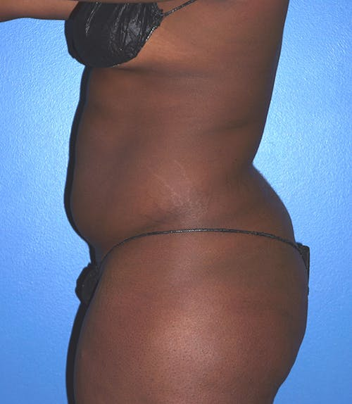 Liposuction Gallery - Patient 5227145 - Image 1