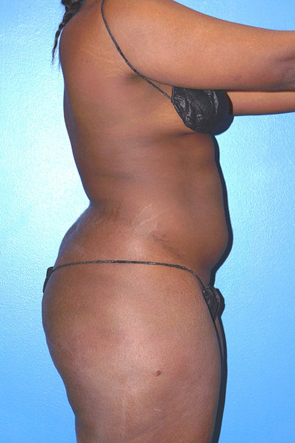 Liposuction Gallery - Patient 5227145 - Image 4