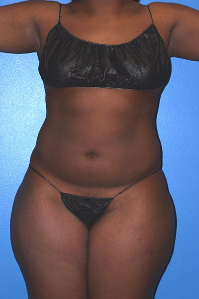 Liposuction Gallery - Patient 5227145 - Image 6