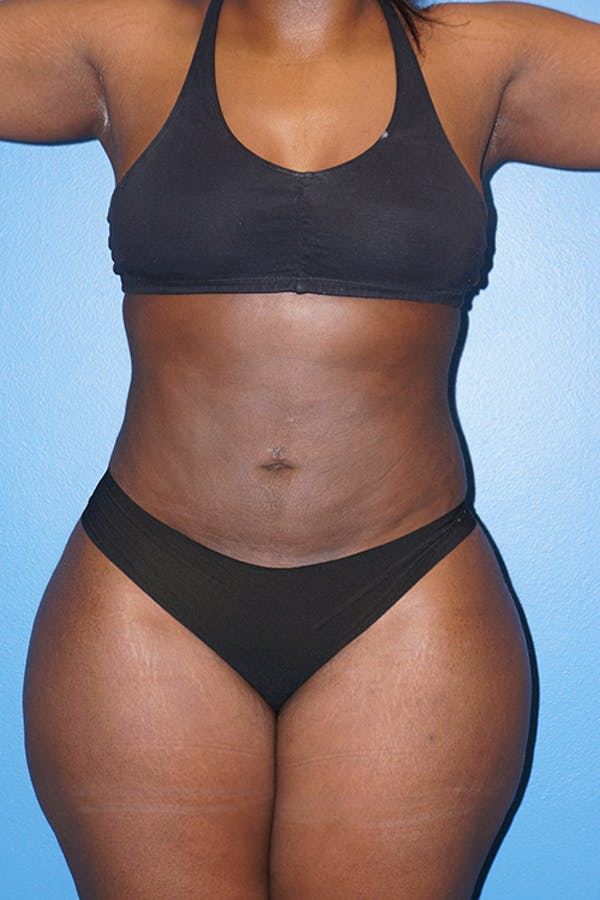 Liposuction Gallery - Patient 5227145 - Image 7
